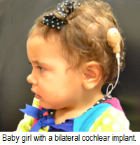 Baby girl with a bilateral cochlear implant.